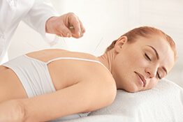 acupuncture - back treatment